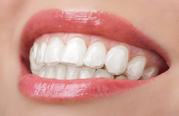 Sandton Invisalign Care